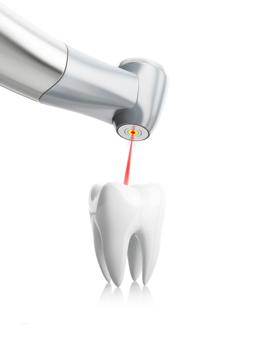 Dental Laser used at Mid Valley Dental in Menasha, WI