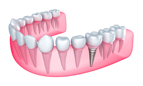 What Can Prevent You From Keeping Dental Implants for a Lifetime?