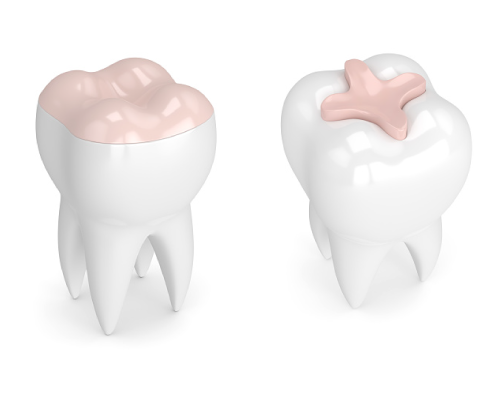 Rendering of dental inlays and onlays at Mid Valley Dental in Menasha, WI