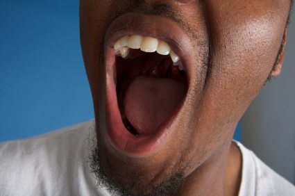 Why Having Dry Mouth is So Unhealthy for Your Teeth